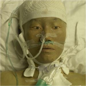 Li Wei, Hero-ICU, 2010